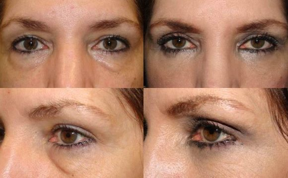 Eyelid Treatment